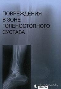 Повреждения в зоне голеностопного сустава (+ CD)