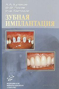 Зубная имплантация. Анатолий Кулаков, Федор Лосев
